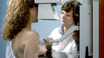 New mammogram guidelines: What's a woman to do?